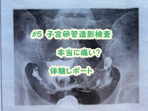 子宮卵管造影検査の痛みとは?体験ブログ