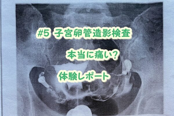 【2度の流産と妊活記録Vol.5】不妊治療スタート!卵管造影検査とは?痛みは?体験ブログ